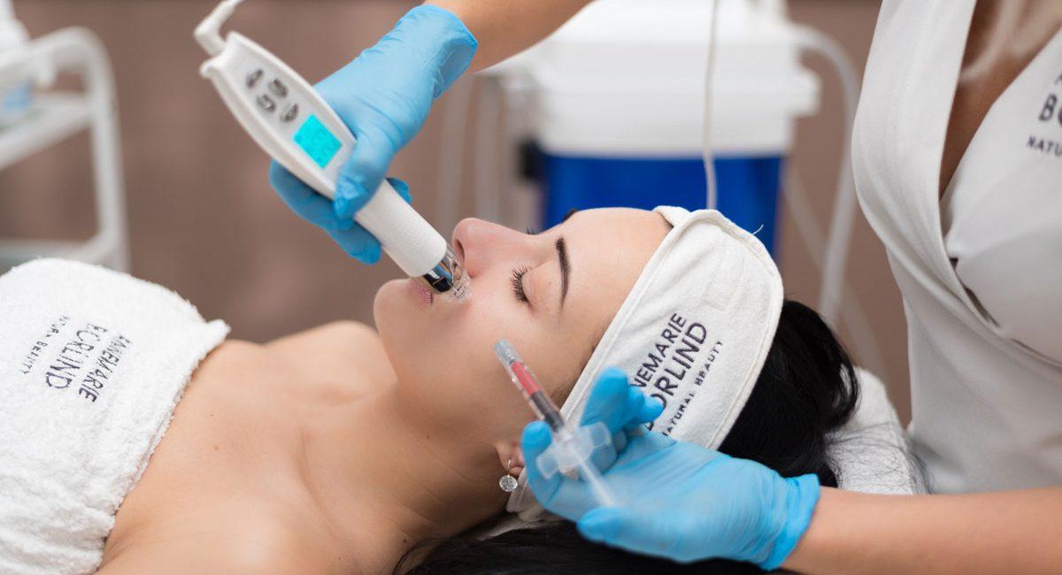 Mezoterapia Použitie: transport účinných látok, redukcia vrások, facelifting, omladenie tváre, vyhladenie jaziev a rán, zúženie pórov, ošetrenie vlasovej pokožky hlavy. Pri klasických mikroihličkových prístrojoch prienik účinných látok naráža na ťažkosti vyplývajúce z obrannej reakcie organizmu, ktorá sa okamžite rozbieha po poraneniach spôsobených ihlou, a sťažuje dodanie účinných látok do hlbších vrstiev. Prístroj EPN spoločnosti EunSung ponúka riešenie tohto problému. Okrem jeho klasického použitia ako mikroihličkového prístroja je výhodou možnosť kombinovať ho s elektroporačnou technológiou, ktorá umožní, aby do pokožky prenikli aj potrebné účinné látky. V elektropačnom režime sa okolo ihly zvyšuje priepustnosť bunkovej membrány, preto účinné látky prenikajú cez bunkové steny aj do hlbších vrstiev kožného tkaniva. Trvanie ošetrenia 60 minút Ideálny efekt sa dosiahne po viacerých opakovaniach (3x), následne udržiavacia terapia raz za pol roka. Po zákroku odporúčame 12 hodín nenanášať mejkap, týždeň po zákroku vynechať pobyt na slnku alebo v soláriu a v saune. Kontraindikácie: Tehotenstvo - kojenie - kožné ochorenie - poruchy zrážanlivosti krvi - akútne prebiehajúce ochorenie - ochorenie ovplyvňujúce funkcie imunitného systému - solárny erytém - známa precitlivenosť na niektorú zo zložiek aplikovaných prípravkov